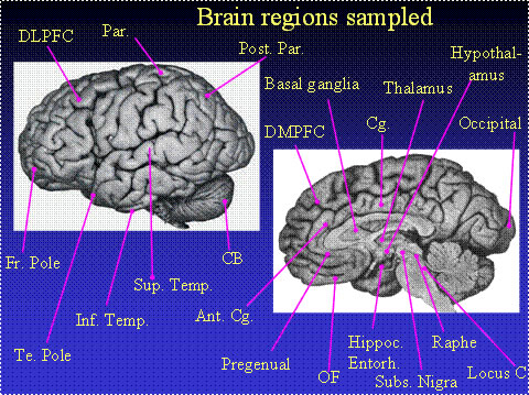Image showing brain regions sampled